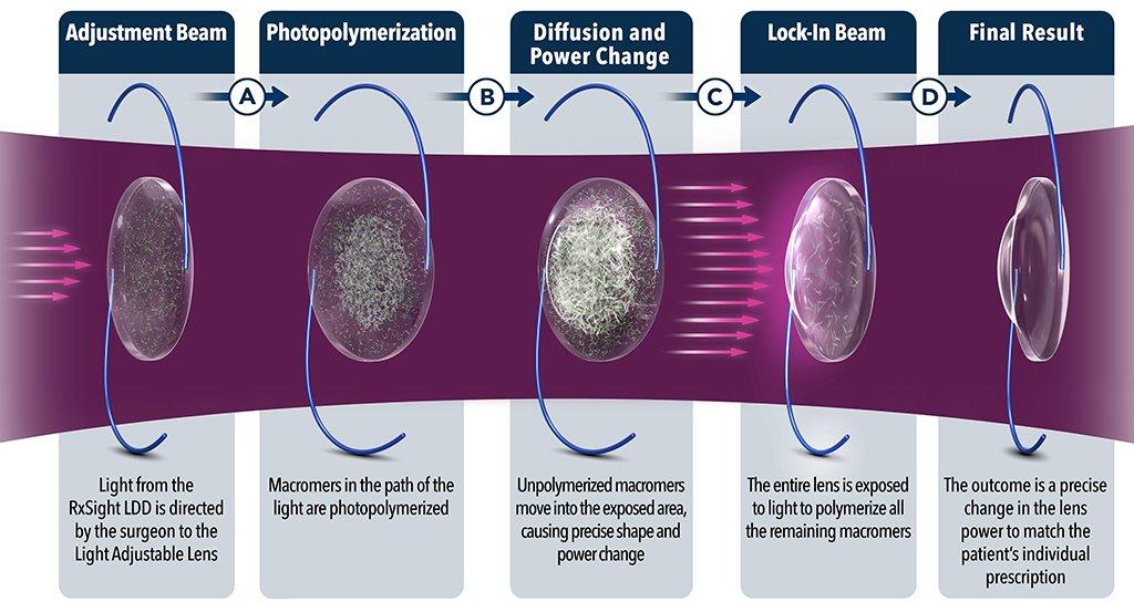 RxSight Lens Adjustment